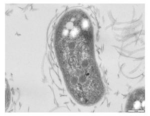 File:Nitrobacter1.jpg